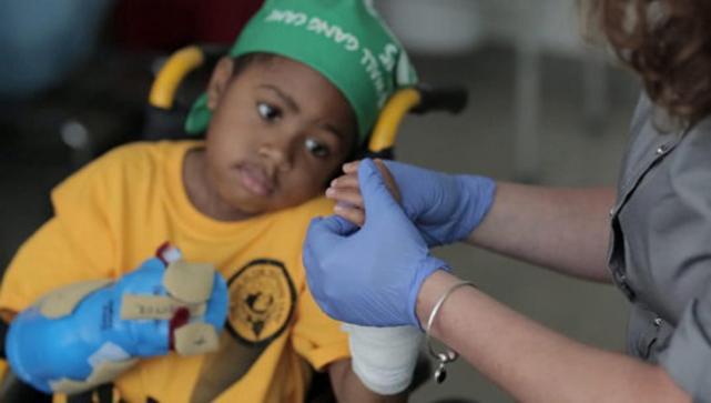 Primer trasplante de manos en un niño es declarado exitoso